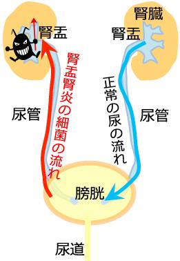 原因 腎盂 腎炎